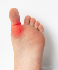 woman suffering from hallux varus on foot big toe