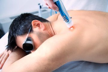 Laser skin treatment therapy with a dark hair man