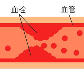 Fototapeta 血管内の血栓 obraz