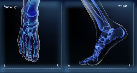 Medial and top view x ray of bones the of foot.
