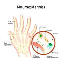 Rheumatoid Arthritis (RA) is an auto immune disease and inflammatory type of arthritis