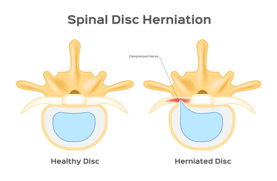Spinal disc herniation / human back infographic vector