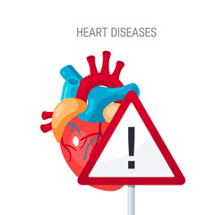 Heart diseases vector concept in flat style