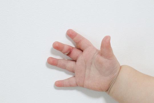 wound burn on child's hand