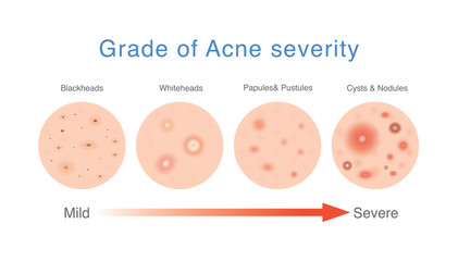 Grade of acne severity. Medical diagram about skin problems from different types acne.