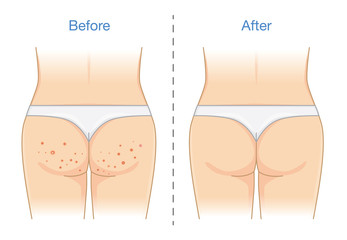 Buttocks with many pimples and after skin treatment. Illustration about health care.