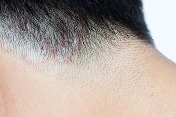 Closed up of ringworm (tinea) on head of asian man (Dermatitis) Fototapete