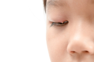 Close up of asian little girl one eye infection isolated