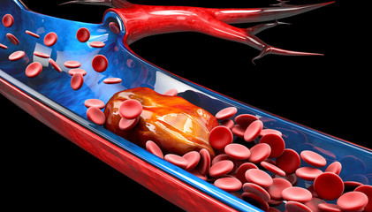 3d Illustration of Deep Vein Thrombosis or Blood Clots. Embolism.