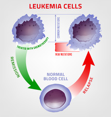 Leukemia medical infographic