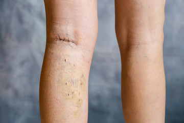 Womans leg after phlebectomy