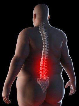 Illustration of an obese man having back pain