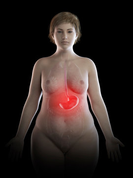 Illustration of an obese woman's painful stomach