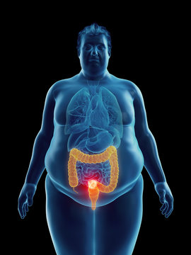 Illustration of an obese man's colon tumor