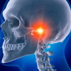 Illustration of a painful temporomandibular joint