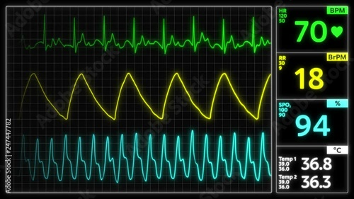 Monitoring of patient's condition, vital signs on ICU monitor in