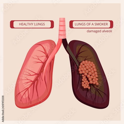 9eff1819f93d Smoke human damage lung cancer vector medical infographic pictures. Smoker  lung cancer