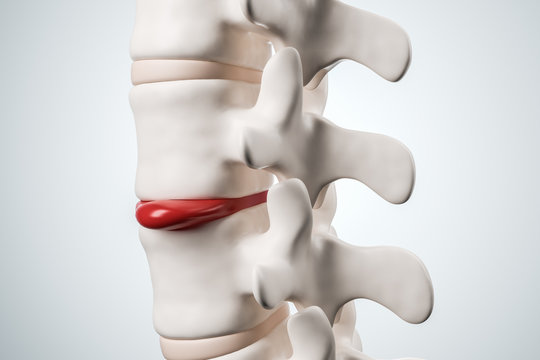 Human spinal system problem. Disk spain degradation. 3d rendering.