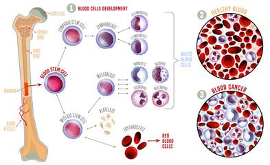 Leukemia medical infographic