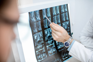 Man during the medical consultation with senior therapist looking on the tomography print at the office