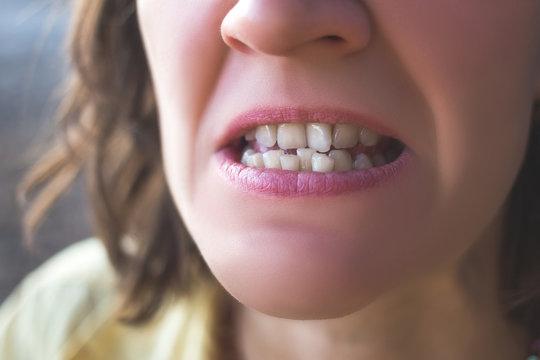 Photo of crooked woman teeth