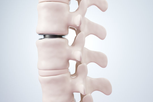 Illustration of intervertebral disc prosthesis. 3d render.