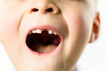 mouth without front tooth of funny boy on white background