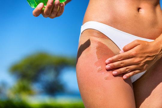 Girl with sunburn applying aloe vera gel soothing lotion after sun cream. Tan line on bikini hips legs woman putting sunscreen sunblock lotion bottle. Skincare red skin cancer beach summer vacation.