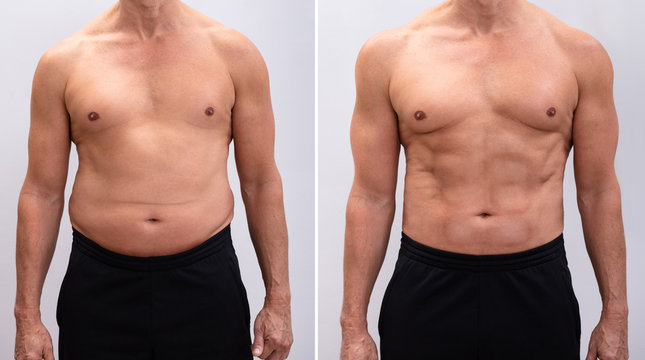 Mature Man Before And After Weight Loss On White Background