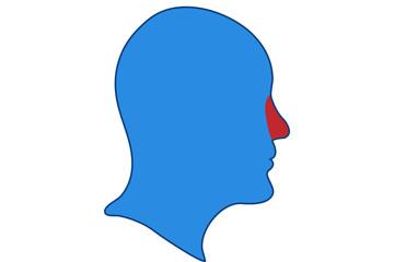 Congestión de la nariz.