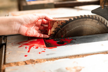 Hand and circular saw disc bloody on white background, Safety first