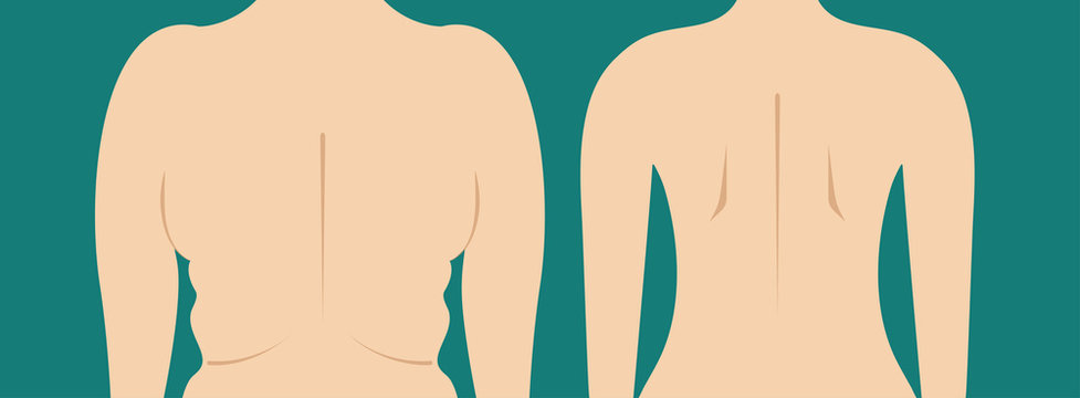 Folds of fat back