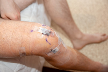 mans knee unwrapped after ACL tear surgery.