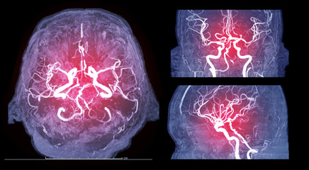 Collection of Magnetic resonance image (MRI) of Vessel in the brain axial , coronal and sagittal view or MRA brain.