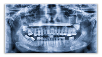 Panoramic dental x-ray image or orthopantomogram of jaw with all teeth  used in dentistry for diagnosis of diseases, disorders and conditions of the oral cavity