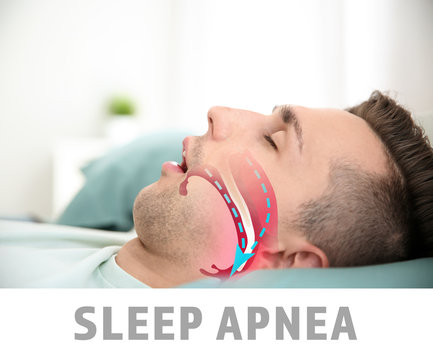 Illustration showing airway during obstructive sleep apnea