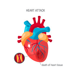 Heart attack concept in flat style, vector