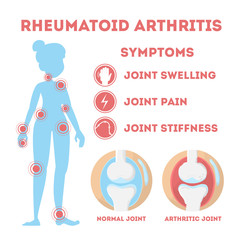 Rheumatism infographic. Bone disease on foot, hand