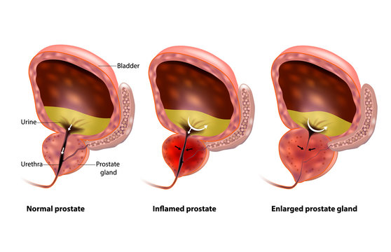 Benign Prostatic hyperplasia (BPH). Inflamed prostate and Enlarged prostate gland