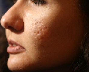 Inflamed skin of the face in pimples and acne. Keloid scars from acne