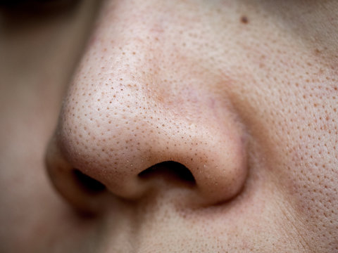 close up wide pores skin on dry face of Asian woman, Female nose and cheek skin problem, large pores, whitehead and blackhead pimple, nose