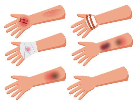 Set of injury arms