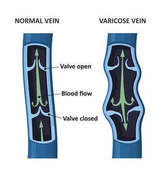 Varicose vein and normal vein