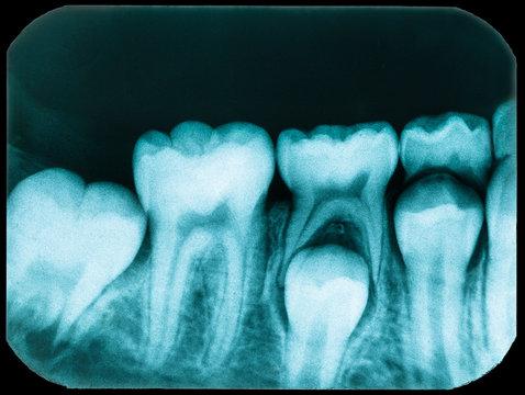 Old Dental x-ray
