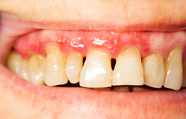 teeth with periodontitis close up