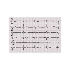 Cardiogram. Heartbeat. The graph on graph paper. Vector illustration on isolated background