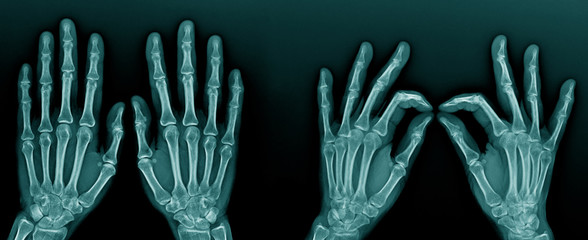 hand x-ray and finger to thumb action