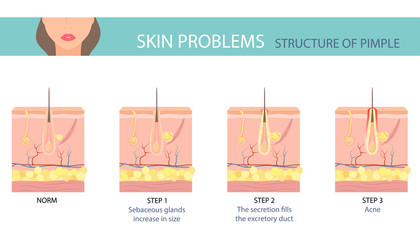 Stages of the acne formation in the human skin. Skin layer with acne. Vector illustration.
