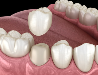 Preparated premolar tooth for dental crown placement. Medically accurate 3D illustration