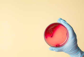 Petri dish with Staphylococcus bacteria in medical laboratory